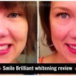 Review: LED teeth whitening at home by Smile Brilliant